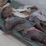 موقع ميدل إيست آي: بريطانيا ساهمت في خلق كارثة إنسانية باليمن