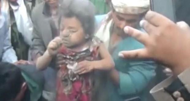 مجازر سعودية متواصلة وأنصار الله تعد بخيارات جديدة