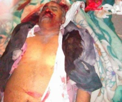 ارتفاع حصيلة ضحايا مجزرة التربويين شمال اليمن إلى 51 شهيداً وجريحاً