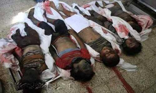 العدوان السعودي يستهدف الأطفال في اليمن