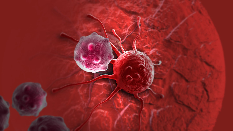 خلية سرطانية