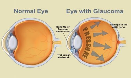 """مقارنة بين عين سليمة وعين مصابة بمرض الماء الأزرق """"الغلوكوما"""""""