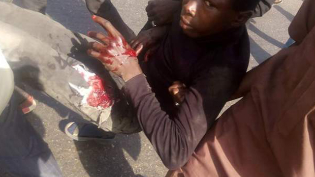 nigeria-ashoura-wounded