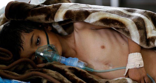 وباء الكوليرا يتفشى بشكل مخيف في اليمن والمجاعة تهدد حياة الملايين