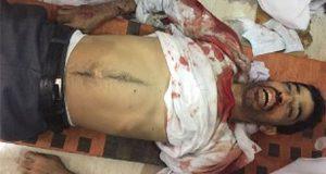 استشهاد شاب بحريني في هجوم للقوات الامنية البحرينية على الدراز