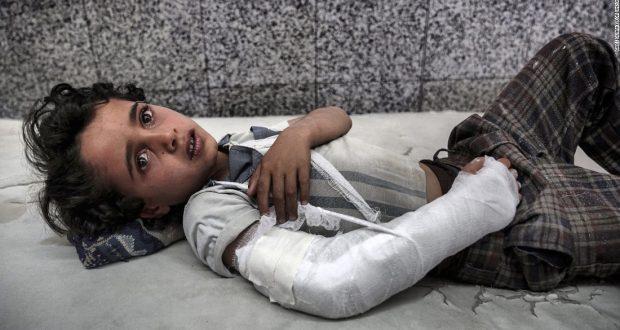 سي أن أن عن اليمن: صور لا ترغب السعودية برؤيتها على الإطلاق