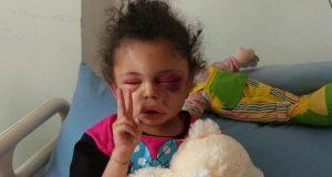 بالصور: بثينة التي حاولت فتح عينها الجريحة فتحت عيون العالم على جرائم السعودية في اليمن